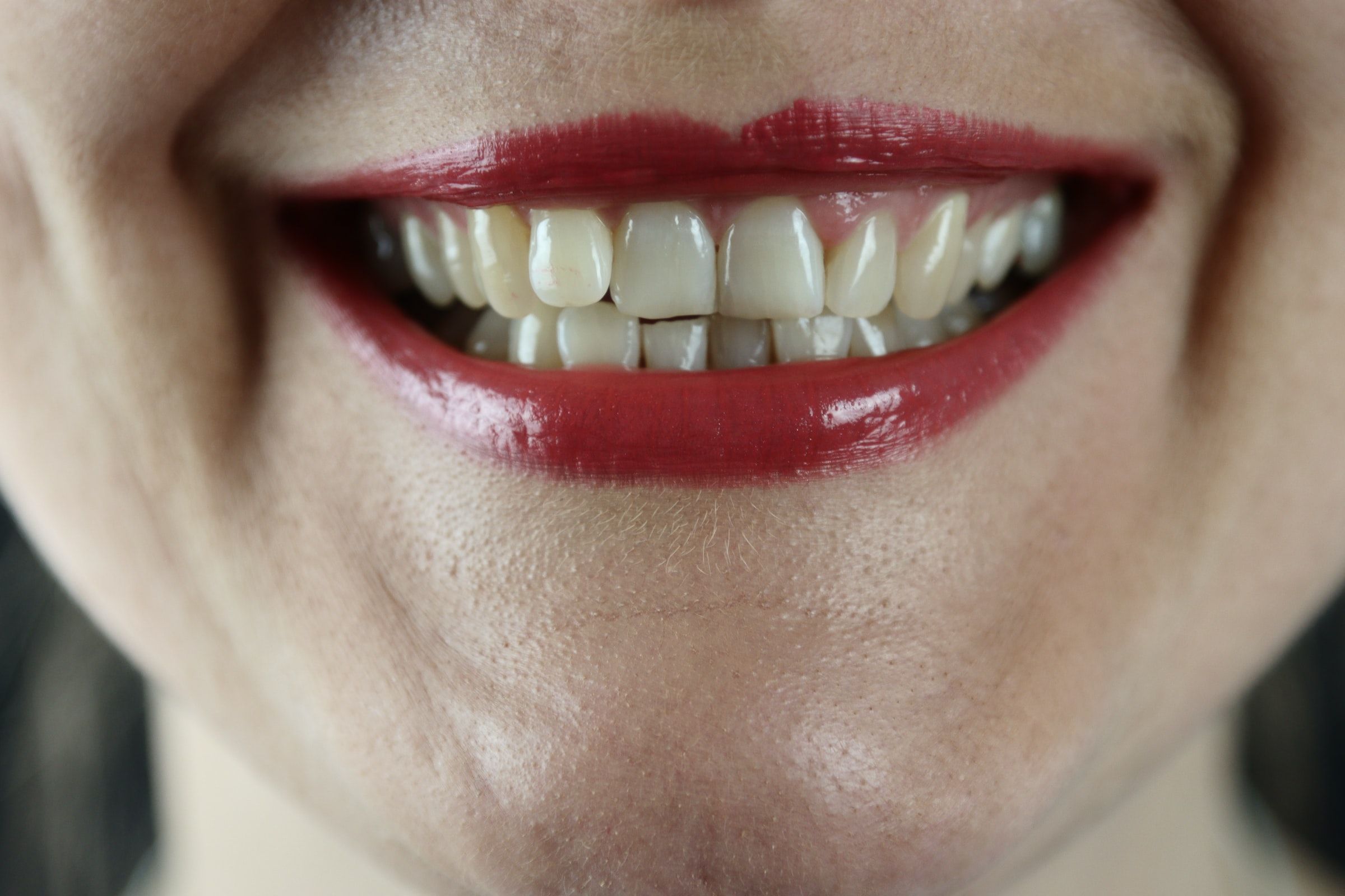 How to Painlessly Whiten Your Teeth