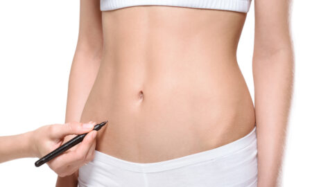 What You Need to Know About Liposuction